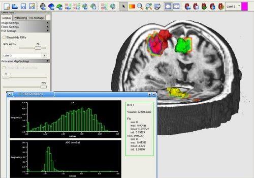 MedINRIA: Aplicaciones de visualización para el diagnóstico médico